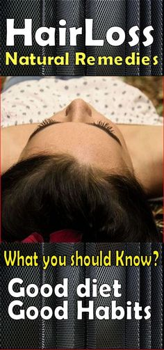Do away with those costly, chemical seeped hair products, and choose natural remedies for loss of hair. There's absolutely nothing like taking advantage of what nature has to offer. #hairlosstreatment #CoconutOilForHairLoss #HairLossRemedies Best Hair Loss Shampoo, Biotin For Hair Loss, Oil For Hair Loss, Biotin Hair, Hair Shampoo, Baby Hair Loss, Stop Hair Loss, Prevent Hair Loss, Herbs For Hair