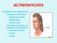 What are the signs and symptoms of actino mycosis? It includes the formation of painful abscesses mainly in the lungs, mouth and gastro intestinal tract. They grow larger in the size as the disease progresses and take a long time for this process to occur. In the severe cases they may go inside...
