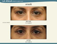 Patient treated with Artefill at La Jolla Cosmetic Laser Clinic. Under Eye Fillers, Under Eye Primer, Laser Clinics, Prevent Wrinkles, La Jolla, Body Wash, Skin Care Tips, Cosmetics, Eyes
