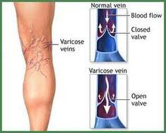 varices termen medical