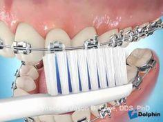 ¿Cómo debo higienizarme teniendo aparatos de ortodoncia?  Durante cualquier tratamiento de ortodoncia se utilizan fuerzas leves que generan, en los dientes a mover, una reabsorción del hueso que las rodea y por otro lado una neo formación de hueso nuevo que va a acompañar a la pieza dentaria en esa nueva posición.