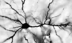 "Neurons branching out from their central cell body into ""dendrites"". 