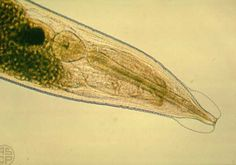 Enterobius vermicularis adult 6/18/16 from parasitology journal