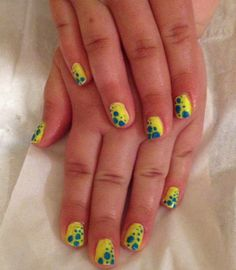 Bright yellow/blue dots
