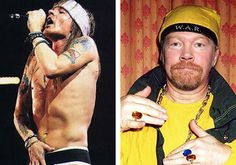 axl-rose-plastic-surgery-before-and-after.jpg (500×350)