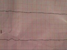 """EMT/Paramedic added a photo from July 27, 2013 to their timeline.   A friend asks a question:  No pulse. PEA or asystole?  95 year old female nursing home pt who coded """"15 minutes ago"""".  Found in this rhythm, warm to touch.  - Reaper    http://teespring.com/bipolarvfib  http://teespring.com/bipolarvfibhoodies"""