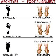 High Arch Foot vs Flat Foot
