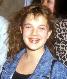 "Celebs with braces! We like this article because the author gives props to mom and dad for getting her braces, she acknowledges the infamous ""awkward phase"" that everyone has. including celebs and the braces pics. Celebrities With Braces, Celebs, Braces And Glasses, Celebrity Smiles, Celebrity Faces, Brace Face, Beautiful S, Beauty Companies, Dental Health"