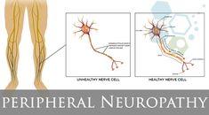 peripheral neuropathy diagnosis