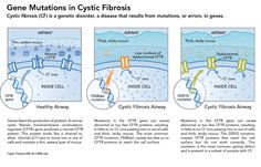 In A Victory For Gene Research, Vertex Drug Combo Clears Lungs Clogged By Cystic Fibrosis