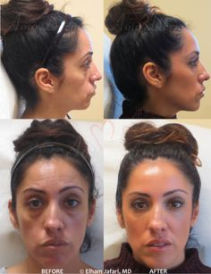 Botox Cosmetic is a prescription medicine that is injected into muscles and used to improve the look of moderate to severe dynamic wrinkles such as frown lines, worry lines, crow's feet, neck bands and laugh lines . . . .