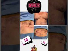 Wow ! Before and After Male Gynecomastia surgery by Dr. Jeneby #shorts - YouTube Top Plastic Surgeons, Surgery, Social Media, Shorts, Youtube, Social Networks, Youtubers, Social Media Tips, Youtube Movies