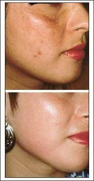 manchas paños y cicatrices Cicatrices Faciales Consejos de eliminación: Dé masajes a su cara con una cucharada de aceite de oliva poco a poco. A continuación, poner una toalla de vapor en la cara. Esto abrirá los poros y también suavizar la piel.