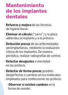 ¿Por qué es importante realizar mantemiento de nuestros implantes dentales  ?