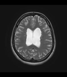 The grey matter heterotopias are a group of conditions characterised by interruption of normal neuronal migration from near the ventricle to the cortex. Grey matter heterotopias are believed to be due interruption of the normal migration of neurons from the periventricular telencephalic germinal matrix to the cortex and may be due to either genetic abnormalities or infection / trauma. http://radiopaedia.org/articles/grey-matter-heterotopia