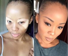 Nigerian woman with vitiligo has Africa-shaped marks on face Read >> https://www.naij.com/905417-incredible-see-this-nigerian-woman-with-the-map-of-africa-on-her-face.html https://www.naij.com/905417-incredible-see-this-nigerian-woman-with-the-map-of-africa-on-her-face.html