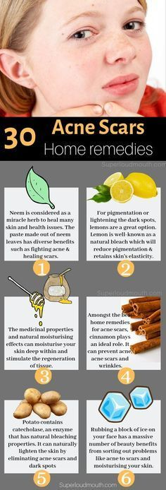 30 Natural Home Remedies to heal Acne Scars overnight These simple home remedies will make your skin get rid of acne scars, dark spots, pigmentation and blemishes. Related posts: 8 Effective Home Remedies for Acne Scars Back Acne Treatment, Natural Acne Treatment, Natural Skin Care, Natural Health, Natural Foods, Natural Sleep, Dark Spot Treatment, Natural Oil, Skin Treatments