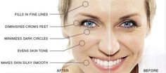 Reduce All Throat And Face Lines With Easy-To-Use Facial Training Routines - Firm Up Hanging Tissue