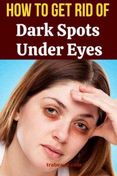 Dark Spots Under Eyes, Brown Spots On Face, Dark Circles Under Eyes, Dark Under Eye, Beauty Tips For Face, Natural Beauty Tips, Beauty Skin, Best Eye Drops, Remedies For Dark Lips