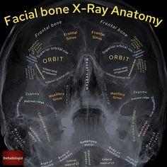 Radiology Schools, Radiology Student, Radiology Humor, Radiology Imaging, Medical Imaging, Medical Radiography, Basic Anatomy And Physiology, Facial Bones, Dental Hygiene School