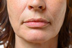 hogyan lehet zsírvesztést végezni a száj körül 700 font fogyás