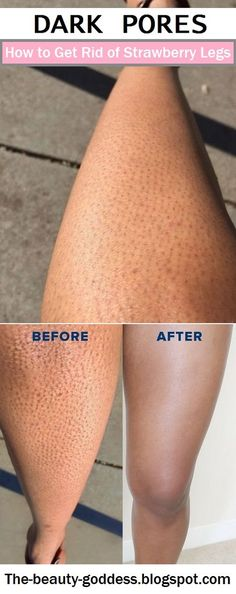 How to Get Rid of Strawberry Legs - The Beauty Goddess