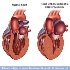 A normal heart (left) and a heart with hypertrophic cardiomyopathy (HCM). Note that the heart walls (muscle) are much thicker (hypertrophied) in the #HCM heart.