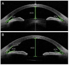 Optical Coherence Tomography test may offer a fast and easy way to monitor patients with multiple sclerosis Opthalmic Technician, Optical Coherence Tomography, Eye Facts, Medical Terminology, Med School, Multiple Sclerosis, Knowledge, Eyes, Health