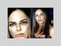 Top 10 Best Examples of Worst Plastic Surgery: mid 40's