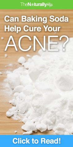Can Baking Soda Help Cure Your Acne? | Some people say it's good, some say it's bad... here's the REAL truth!