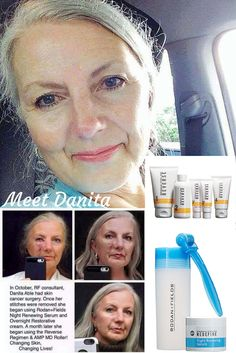 Meet Danita, who not only survived skin cancer, she fought back against the damage caused by the surgery with Rodan + Fields! This is what we mean when we say our products are changing skin, and changing lives! Gblades.myrandf.com