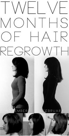 Re-growing your hair.