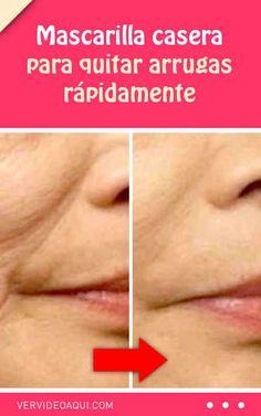 Mascarilla casera para quitar arrugas rápidamente #mascarilla #casera #arrugas #antiarrugas #quitar #eliminar