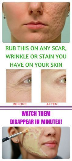 Creams to Remove Face Stains - Creams to Remove Face Stains - . - Homemade creams to remove face stains - Homemade creams to remove face stains Salud Natural, Natural Honey, Natural Oils, Tips Belleza, Belleza Natural, Skin Problems, Skin Treatments, Acne Treatment, Face Care