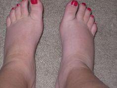 La hinchazón en los pies puede ser causado por muchas razones. Se hincha la zona de los tobillos y piernas, debido a la acumulación de sangre en esas zonas, puede ser por alguna enfermedad o incluso sucederle a personas sanas...Conoce Estos Remedios Populares Caseros Para Pies Hinchados o Inflamados