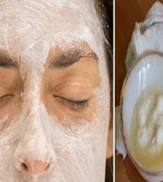 DIY beauty & Face masks : Apply This Baking Soda And Lemon Mask On Your Face And Something Amazing Will Ha… Acne Remedies, Natural Remedies, Beauty Care, Diy Beauty, Baking Soda Mask, Baking Soda Benefits, Baking Soda And Lemon, Best Face Mask, Face Masks