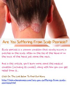 psoriasis skin cream