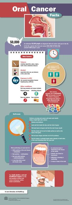Oral Cancer Facts Infographic