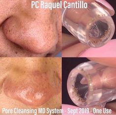 Unclog Your Pores with Pore Cleansing MD System Rodan And Fields Consultant, Pore Cleansing, Acne And Pimples, Clean Pores, Minimize Pores, Unclog Pores, Skin Care Tools, Blackhead Remover