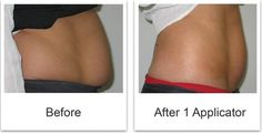 it works before and after photos - Bing Images #love #wraps #wedding #weight loss #inches #detox