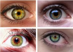 Central heterochromia is an eye condition where there are two colors in the same iris; the central (pupillary) zone of the iris is a different color than the mid-peripheral (ciliary) zone.