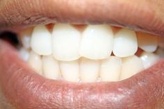 Never use whitening strips again!  How to Clean Your Teeth With Hydrogen Peroxide