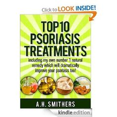 Top 10 treatments for psoriasis