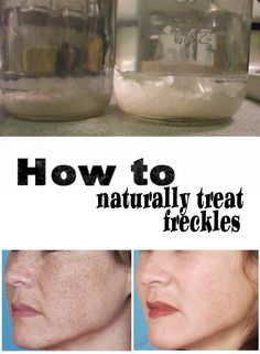 how to get freckles naturally