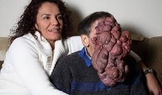 Facial tumors