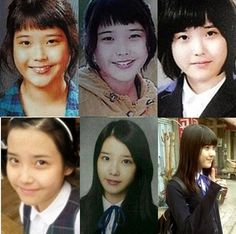 IU's changing appearance over the years receives attention Kpop Plastic Surgery, Snsd, Chung Ah, Ulzzang Korean Girl, People Of Interest, Moon Lovers, Iu Fashion, My Little Baby, Korean Celebrities