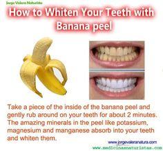 How to whiten your teeth with banana peel #diy #beauty #teeth #white #banana