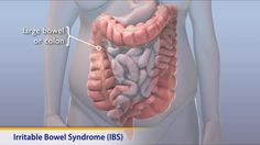 Some things you can do to help IBS pain and cramping: and this can REALLY help both diarrhea OR constipation. Description from cdmedics.eu. I searched for this on bing.com/images