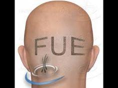 Darling Roots FUE HairTransplant STEPbySTEP