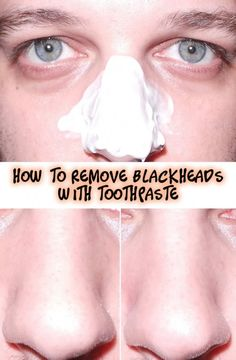 How to Remove Blackheads with Toothpaste Mint in the toothpaste is a natural active ingredient that will open your pores and kill bacteria. Toothpaste also deep cleans pores and plucks out blackheads. Salt is a natural disinfectant and he… Blackhead Remedies, Blackhead Remover, Acne Remedies, Beauty Secrets, Beauty Hacks, Beauty Ideas, Diy Beauty, Beauty Products, Deep Clean Pores